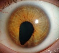 "This eye with coloboma shows a keyhole-shaped defect in the iris, which distorts the pupil.  Coloboma can appear as a small defect in the front of the eye, giving the pupil a black ""keyhole"" shape that juts into the normally colorful iris. A person with this abnormal-looking pupil may have perfectly normal vision, Brooks explains."