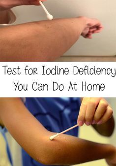 odine deficiency is part of the top 3 most common deficits, along with magnesium and vitamin D. Here is a Test for Iodine Deficiency You Can Do At Home! Thyroid Supplements, Thyroid Diet, Thyroid Issues, Thyroid Disease, Iodine Deficiency Symptoms, Iodine Benefits, Adrenal Health, Adrenal Fatigue