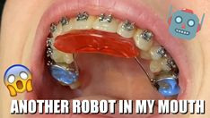 Do you want to know why some patients need to get some metal appliances during the braces treatment? Tooth Time Family Dentistry New Braunfels, Seguin, San A. Teeth After Braces, Braces Before And After, Rainbow Braces, Dental Videos, Braces Tips, Cute Braces, Invisible Braces, Dentist Near Me, Orthodontic Appliances