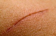 Yara İzleri İçin Doğal Tedavi: Yara izleri, sadece estetik sebeplerden ötürü değil,aynı zamanda cildin tamamen iyileşmesi içinmümkün olduğunda çabuk tedavi edilmelidir.