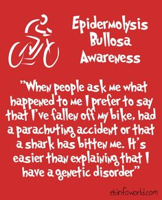 When people ask me what happened to me I prefer to say that I've fallen off my bike, had a parachuting accident or that a shark has bitten me. It's easier than explaining that I have a genetic disorder. #EpidermolysisBullosa #EBawareness #stopEb #EBaware http://ebinfoworld.com         http://butterflychildamothersjourney.com