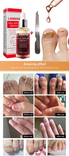Nail Repair Essence Serum Fungal Nail Treatment Remove Onychomycosis Hands and Feet Care of Toe Nail Nourishing Brighte Argan Oil For Hair Loss, Best Hair Loss Shampoo, Biotin For Hair Loss, Biotin Hair, Hair Shampoo, Baby Hair Loss, Hair Loss Cure, Normal Hair Loss, Best Facial Hair Removal