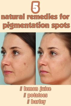 Read directions about 5 natural remedies for pigmentation spots.