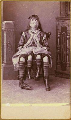 Girl with 4 legs- c.1880's Tennessee - Josephine Myrtle Corbin