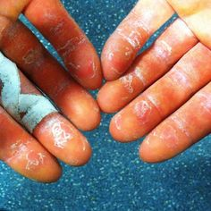 Rock Climbers: How to Care for Your Fingers & Hands