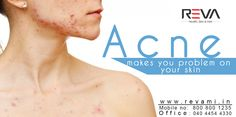 Acne makes you problem on your skin Don't worry we have treatment for Acne -> http://revami.in/skin.php   #Acne #Acnetreatment #skincare #skintreatment