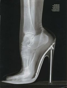 X-Ray of foot in high heeled shoe, asking for an injury...