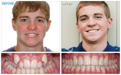 Treatment Time: 14 months and 7 appointments Braces Before And After, After Braces, Damon Braces, Kids Braces, Teeth Straightening, Dental Hygiene, Dentistry, Appointments, Food Videos