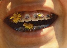 i've never seen something that makes braces look aesthetic Aesthetic Pictures, Aesthetic Photo, Character Aesthetic, Flower Yellow, Braces Colors, Brace Face, Mabel Pines, Foto Pose, Mellow Yellow