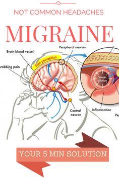 Kill Migraine In 5 Minutes- Amazing Recipe