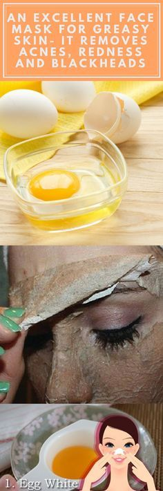 An Excellent Face Mask For Greasy Skin- It Removes Acnes Redness And Blackheads