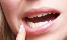 Affordable Dentist Houston: Our dental office provides cost-effective services by our qualified dentist. Find affordable dental care near me today! Gum Disease Treatment, Gum Disease Cure, Cheap Dentist, Wisdom Teeth Removal, Mouth Sores, Gum Health, Oral Health, Honey, Medicinal Plants