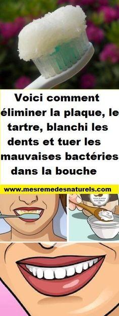 Voici comment éliminer la plaque, le tartre et tuer les mauvaises bactéries dans la bouche