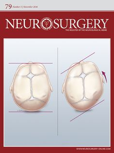 Congress of Neurological Surgeons Systematic Review and Evidence-Based  Guideline on the Role of Cranial Molding Orthosis (Helmet) Therapy for Patients With Positional Plagiocephaly Abstract BACKGROUND:. No evidence-based guidelines exist on the role of cranial-molding orthosis (helmet) therapy for patients with positional plagiocephaly.OBJ Literature Search, Dimensional Analysis, Pediatric Physical Therapy, Randomized Controlled Trial, Alternative Treatments, Infancy, The 5th Of November, Medical Advice, Pediatrics