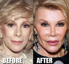 Joan Rivers Plastic Surgery Before and After Photos: Detox . - - Joan Rivers Plastic Surgery Before and After Photos: Detox … <! Bad Celebrity Plastic Surgery, Botched Plastic Surgery, Bad Plastic Surgeries, Plastic Surgery Gone Wrong, Plastic Surgery Photos, Facelift Before And After, Botox Before And After, Joan Rivers, Worst Celebrities