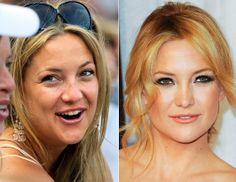 Kate Hudson. nose job, and she has also had a breast augmentation. This before picture doesn't look like she has on any makeup, so everything else could just be good makeup, or a little photoshop on those laugh lines. lt.