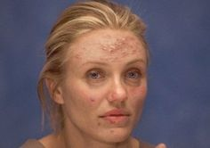 13 celebrity pictures, that you wish you could forget: Cameron Diaz