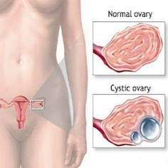 How to Prevent Ovarian Cysts (Note: Dietary and lifestyle are extremely effective on people with PCOS)