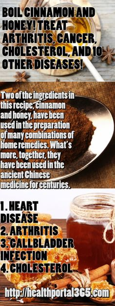Boil Cinnamon and Honey! Treat Arthritis, Cancer, Cholesterol, and 10 Other Diseases! - Health Portal 365