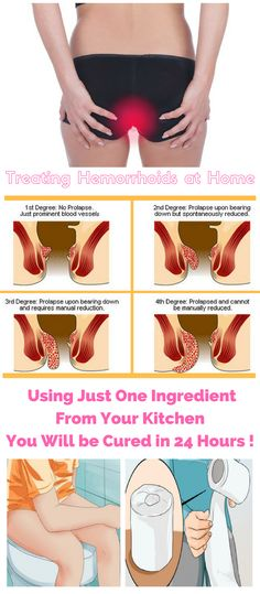 Treating Hemorrhoids at Home: With One Ingredient From Your Kitchen You Will be Cured in 24 Hours !