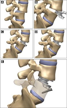 spondylolisthesis physical therapy exercises