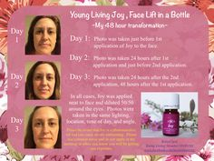 Face Lift in a Bottle. This is what happened when I read in my Essential Oil Pocket Reference that Young Living Joy Blend helps to tighten sagging skin. Essential Oils For Face, Essential Oil Uses, Doterra Essential Oils, Young Living Essential Oils, Yl Oils, Young Living Joy, Healing Oils, Sagging Skin, Watch Wallpaper