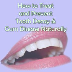 Prevent and Reverse Gum Disease & Tooth Decay Naturally