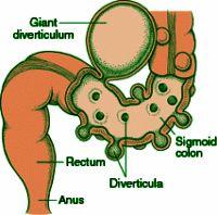 Diverticulitis --Sigmoid colon - Diverticulum - Rectum - Anus
