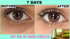How To Get Rid of Dark Circles In 7 Days | Under Eye Treatment