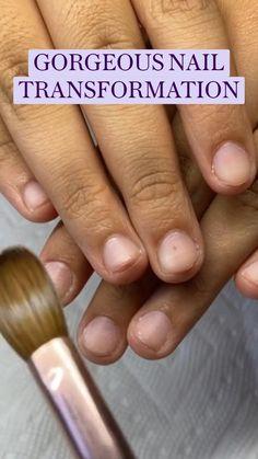Gel Nails, Nail Polish, Curved Nails, Nail Room, Square Acrylic Nails, Pretty Nail Art, Prevent Hair Loss, Glitter Nail Art, Hair Loss Treatment