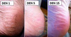 Popraskané paty jsou poměrně běžnou zdravotní komplikací, která může být jen čistě kosmetickým problémem, ale nejednou i bolestivým stavem.