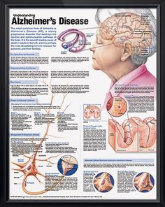 Understanding Alzheimer's Disease anatomy poster anatomy poster discusses the aging brain, dementia and methods of diagnosing AD. Neurology chart for doctors, nurses and students. November is Alzheimer's Awareness Month #AAM