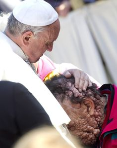 The 45 Most Powerful Photos of 2013 | Pope Francis blesses and prays with a severely disfigured man.