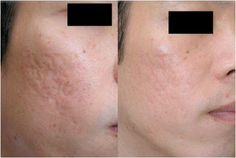 Derma Roller micro needling before and after treatment acne scarring. www.derma-logi.com
