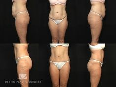 Destin Plastic Surgery — Photo Gallery - Liposuction Cases