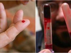 Hustá krev – Toto je skrytá hrozba, které je vystaven každý z nás!
