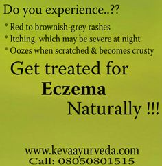 Keva Ayurveda: Get treated for Eczema Naturally !!!  For free consultation, call - 8050801515  Keva Ayurveda Health Care Pvt Ltd Multi Speciality Clinic | Pharmacy | Therapy Centre  Locations: 1. BTM Layout: #57, 35th Main, BTM 2nd Stage, Bangalore – 560076 2. HSR Layout: #600, 14th Main, 15th Cross, HSR Sector -4 , Bangalore – 560102 3. Indiranagar: #1334, 12th Cross, Double Road, Indiranagar, Bangalore - 560038  Call : 08050801515 / 080 41510441 / 8050056044 Webiste: www.kevaayurveda.com