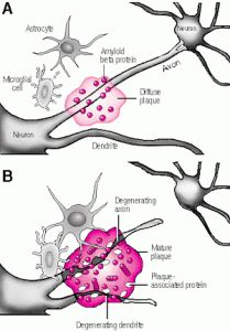 Alzheimers may be linked to diabetes. That's why it's called diabetes 3. Same glycation process as cirrhosis of the liver. Caused not by alcohol carbs, but by every day sugars.