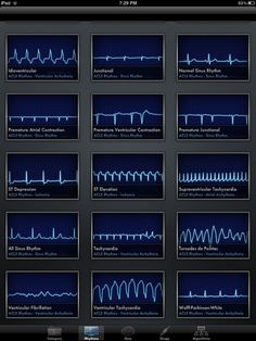 ACLS Rhythms Cheat Sheet | Welcome, Guest | Login | Register | Forgot Password |