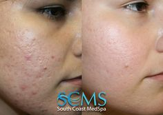 South Coast MedSpa Laser Acne Scar Removal how to get rid of acne scars Laser For Acne Scars, Laser Acne Scar Removal, Laser Hair Removal, Facial Scars, Pimple Scars, Scar Removal Surgery, How To Get Rid Of Acne, How To Remove, Adult Acne Treatments