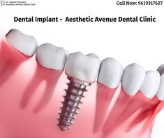Meet Aesthetic Avenue Dental Clinic here you will get Dr. Raichel Thomas Best Dentist in nerul (East) for all dental treatment. Dental Check Up, Navi Mumbai, Best Dentist, Oral Hygiene, Dental Implants, Dental Care, Clinic, The Cure, Meet