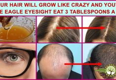 Your Hair Will Grow Like Crazy And You'll Have Eagle Eyesight Eat 3 Tablespoons A Day. Many people are suffering from problems such as poor eyesight or hair . Hair Loss Cure, Hair Loss Remedies, Prevent Hair Loss, Reverse Hair Loss, Eye Sight Improvement, Regrow Hair, Like Crazy, Unwanted Hair, Hair Loss Treatment