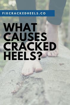 What are the main causes of cracked heels? Which medical conditions causes cracked heels?Read this to find the most common reasons your heels crack. What Causes Cracked Heels, Dry Cracked Heels, Cracked Hands, Cracked Skin, Foot Remedies, Dry Skin Remedies, Heel Fissures, Rough Heels, Dry Heels