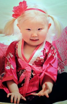 My daughter has Albinism also-only red hair and blue eyes from Changsha,Hunan!!!