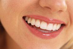 ¿Sabías que la cebolla favorece la salud dental? Contiene sustancias anti-bactericidas y sus efectos son mejores cuando está cruda.