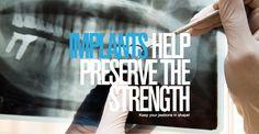 Impladenta Titan Implants help preserve the strength! Preserve, Strength, How To Make, T Shirt, Women, Chow Chow, Tee, Women's, Preserves