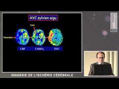 Imagerie de l'ischémie cérébrale (J-C BARON) - YouTube