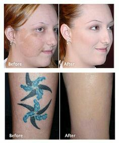 Cover up tattoos, scars & birthmarks | camouflage Amber ...