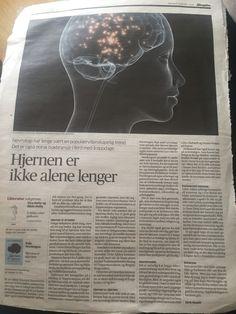Hjernen er stjernen