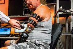 The Myo armband is being used to control a prosthetic arm by researchers at Johns Hopkins I Engadget